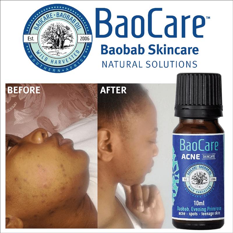 BaoCare Acne SkinCare works wonders!