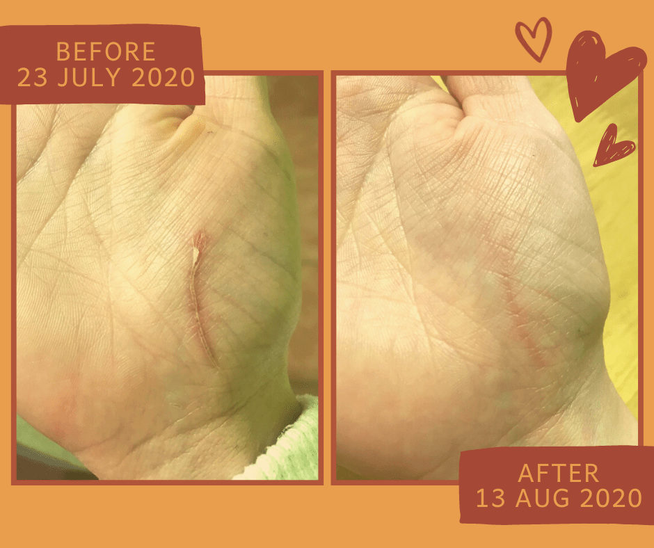 BaoCare Tissue Oil: Rapid Healing of Scar